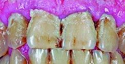 Mundhygiene bei älteren Menschen